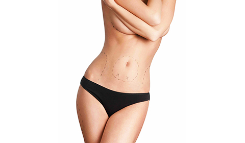 Sydney's Best Lipo body contouring experts in Sydney Australia