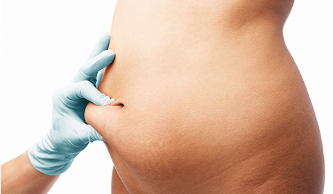 Stomach liposuction techniques for men and women